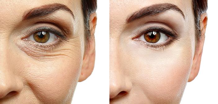 Huden ændrer sig med alderen