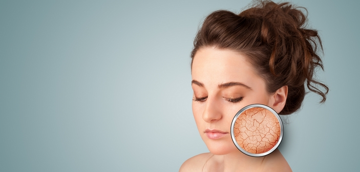 tør hud i ansigtet
